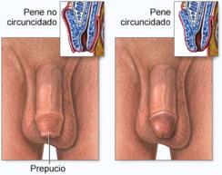 Operación de Fimosis Barcelona Dr Wafik